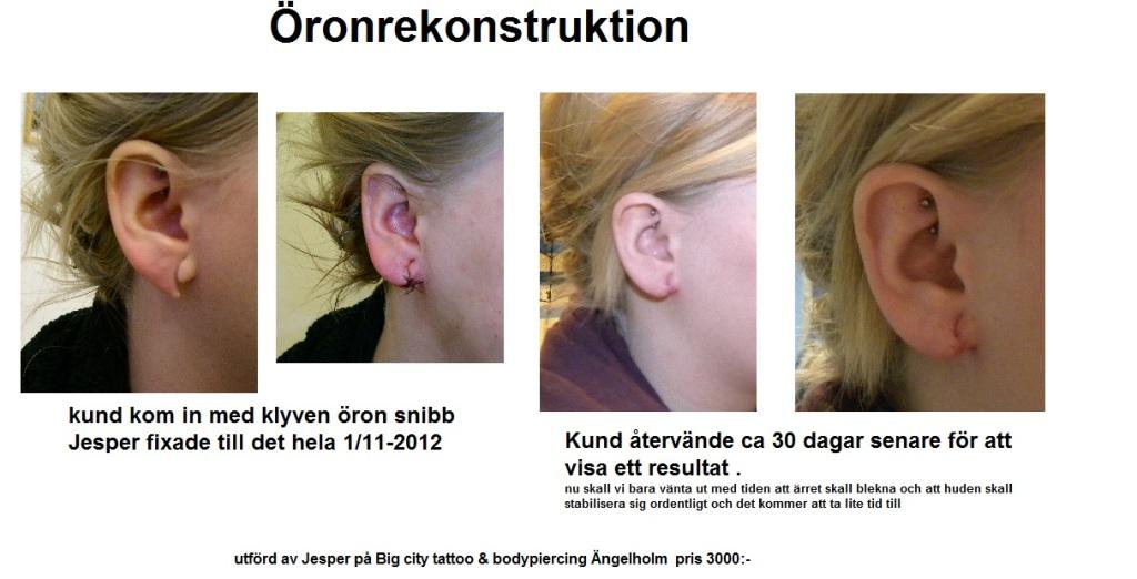 öronrekonstruktion